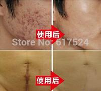 Nuobisong Super Remove Scar Cream Remove Acne Spots Remove Striae Gravidarum Skin Treatment  Care Anti-Aging Moisturizing 15ml
