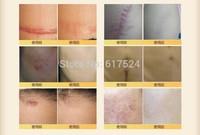 200pcs dhl free shipping Nuobisong Remove Scar gel  Acne Spots Striae Gravidarum Pigmentation Anti-Aging Moisturizing cream 15ml