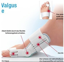 New product arrival 1pair (2pcs) Hallux valgus orthotics outer thigh bone orthotics 24 hours can be used
