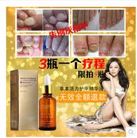 2PCS/LOT Fungal Nail Treatment Essence Nail and Foot Whitening Toe Nail Fungus Removal Feet Care Nail Gel Free Shipping