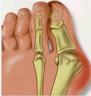 2 Pcs Feet Care Pedicure Soft Gel Valgus Pro Hallux Valgus Sosu Valgus Pro Health Monitors For Foot CallusMFO-02(China (Mainland))