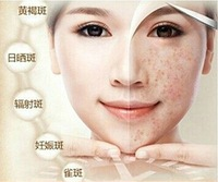instant skin whitening cream 360gram age spot freckle inhibit melanin production reduce melanin deposition shiny white skin