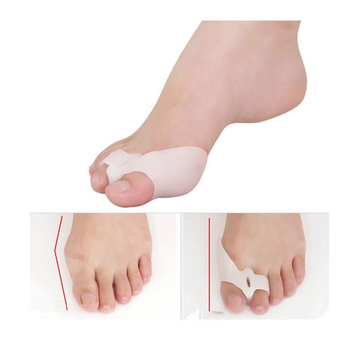 Foot Hallux Valgus Corrector Medical Silicone Gel Big Toe Separator Bunion Protector Pain Guard Feet care Corretivo Correction(China (Mainland))