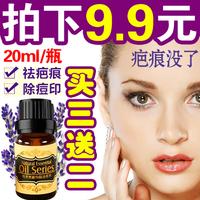 3pcs/lot Lavender essential oil compound spirit scar repair  downplay scar 20ml