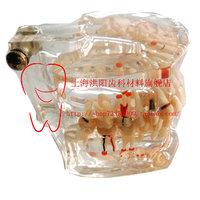 Dental Materials Pathology comprehensive treatment of pathological study model