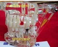 Removable dental oral pathology teaching model adult dental teeth