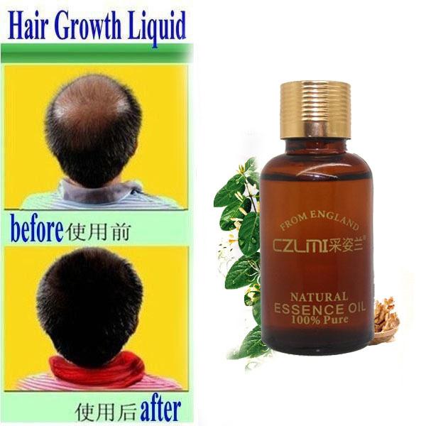 3pcs 100% genuine Original CZLMI Hair Growth Essence Hair Loss Liquid 10ml dense hair Yuda pilatory fast hair growth treatment(China (Mainland))