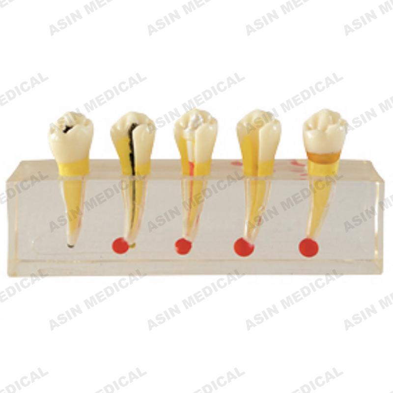 Лечение корневого канала пульпы зуба