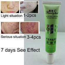 2015 Aloe Vera Gel Acne Remove Vanishing Dispelling Plaster Cream Skin Care Beauty Product Acne Treatment
