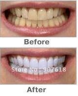 $10 off per $100 order ! Free shipping!! HIGH STRENGTH BLEACHING TEETH WHITENING TOOTH WHITENER GEL PEN STRONG WHITE