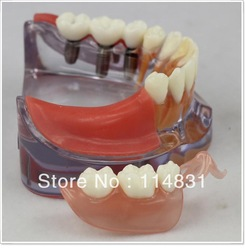Free Shipping 1 Pc New Dental New Dentist Study Teach Teeth model Implant Restoration Model as seen on tv(China (Mainland))