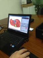 3D NLS Health Analyzer 3D CELL 3D MRA BODY ANALYSIS German,Italian,Russian,Spanish language