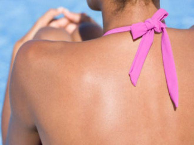 Как убрать прыщи на спине и плечах быстро в домашних условиях