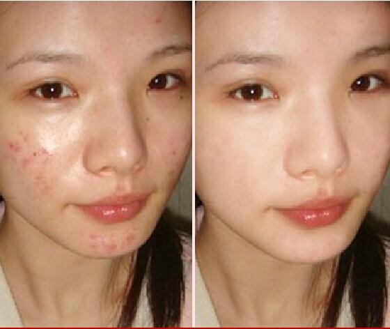 Le blanchiment la rubéfaction de la peau
