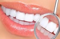 Oral Hygiene Zirconium Dioxide Computer Discount Card Teeth Whitening