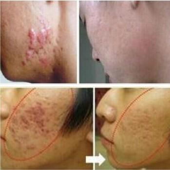 LANBENA с экстрактом женьшеня против черных точек крем для удаления шрамов уход за ...