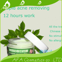 Acne medicine acne cream products scar acne mint pockmark chinese medicine  free  shipping