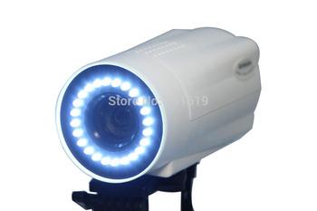 RCS-400 High-quality digital electronic colposcope SONY 480,000 pixels