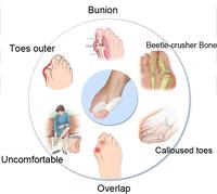 Latest styles Silicone toe separator Toe protection orthopedic Correction thumb Valgus pro foot big bone adjustment 1pairs=2pcs